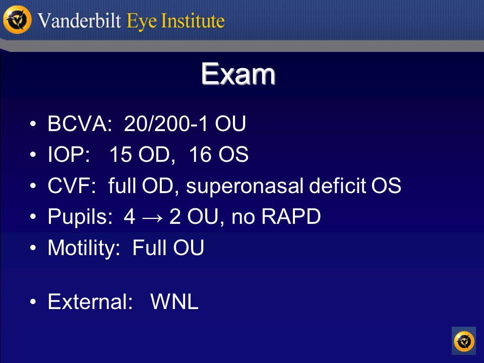 Exam BCVA: 20/200-1 OU IOP: 15 OD, 16 OS CVF: full OD, superonasal deficit OS Pupils: 4 → 2 OU, no RAPD Motility: Full OU External: WNL