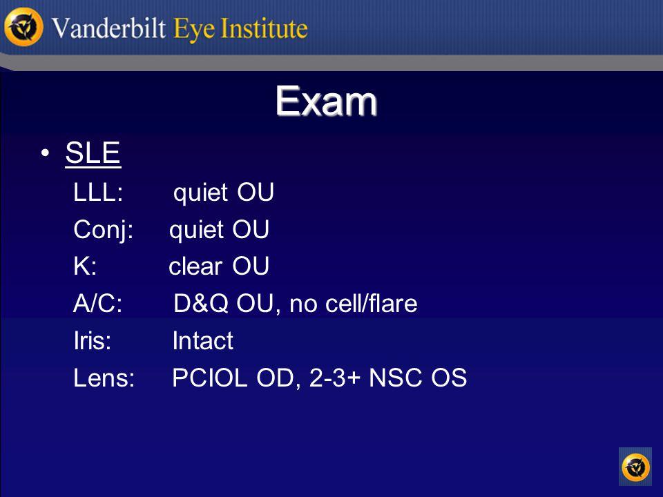 Exam SLE LLL: quiet OU Conj: quiet OU K: clear OU A/C: D&Q OU, no cell/flare Iris: Intact Lens: PCIOL OD, 2-3+ NSC OS
