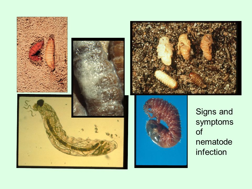 Signs and symptoms of nematode infection