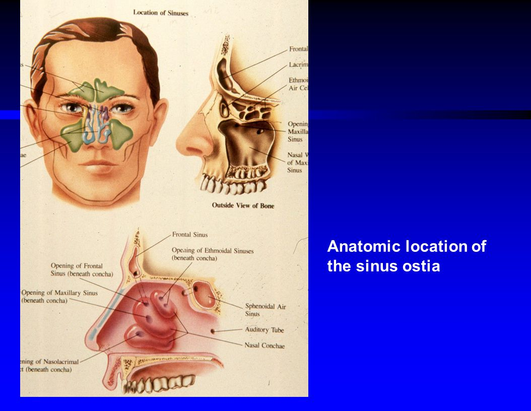 Anatomic location of the sinus ostia