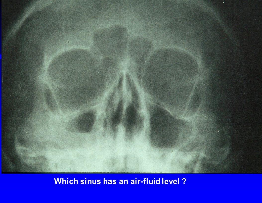 Which sinus has an air-fluid level ?