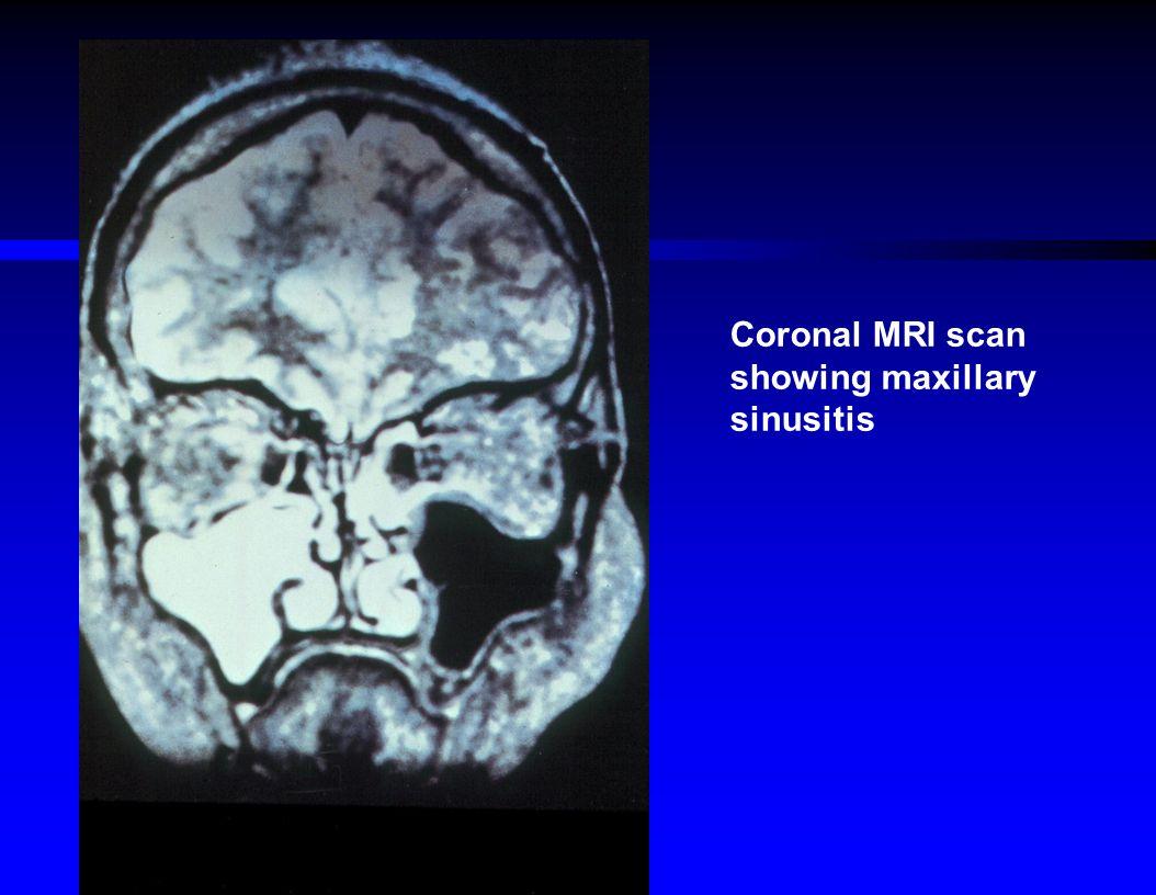 Coronal MRI scan showing maxillary sinusitis