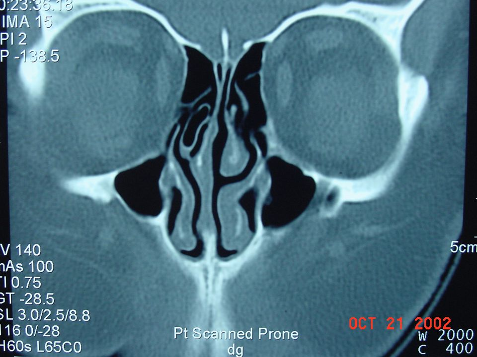 SURGICAL TREATMENT Open sinus procedures –Caldwell Luc –Trephination –Frontal sinus osteoplastic flap