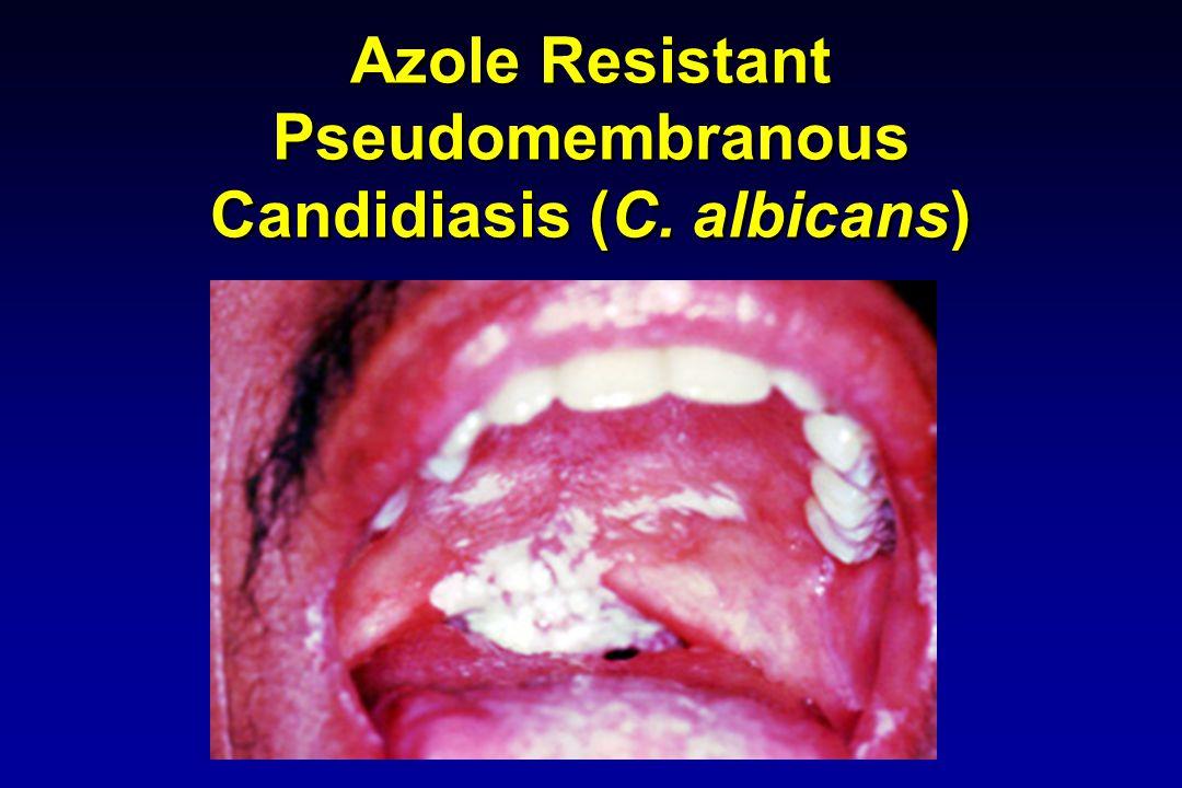 Azole Resistant Pseudomembranous Candidiasis (C. albicans)