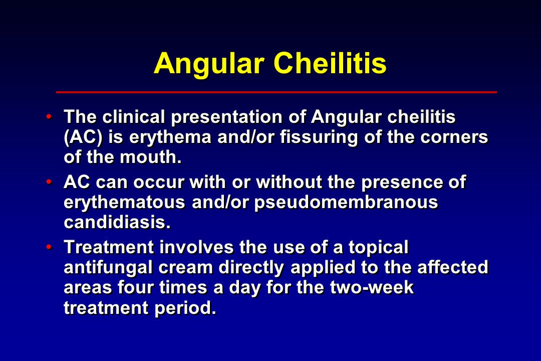 Angular Cheilitis The clinical presentation of Angular cheilitis (AC) is erythema and/or fissuring of the corners of the mouth.