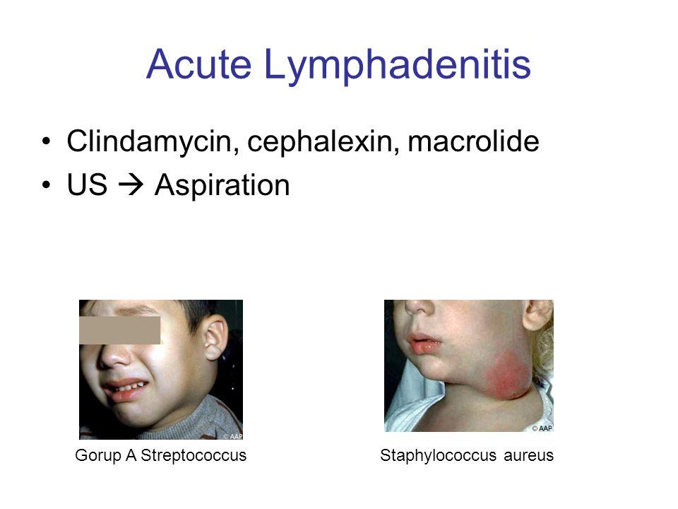 Acute Lymphadenitis Clindamycin, cephalexin, macrolide US  Aspiration Gorup A StreptococcusStaphylococcus aureus