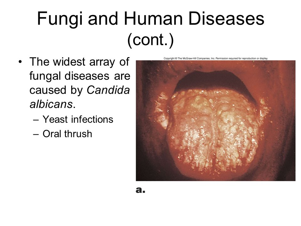 Fungi and Human Diseases (cont.) The widest array of fungal diseases are caused by Candida albicans. –Yeast infections –Oral thrush