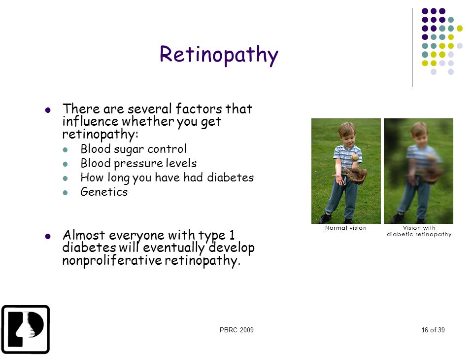 PBRC 200916 of 39 There are several factors that influence whether you get retinopathy: Blood sugar control Blood pressure levels How long you have ha