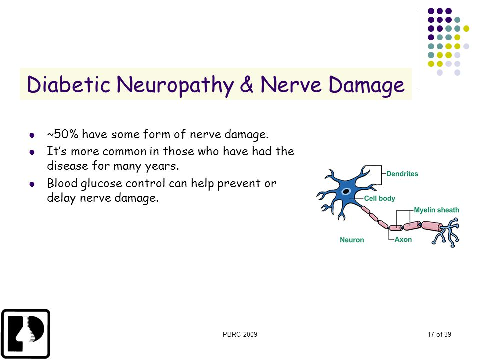 PBRC 200917 of 39 Diabetic Neuropathy & Nerve Damage ~50% have some form of nerve damage. It's more common in those who have had the disease for many