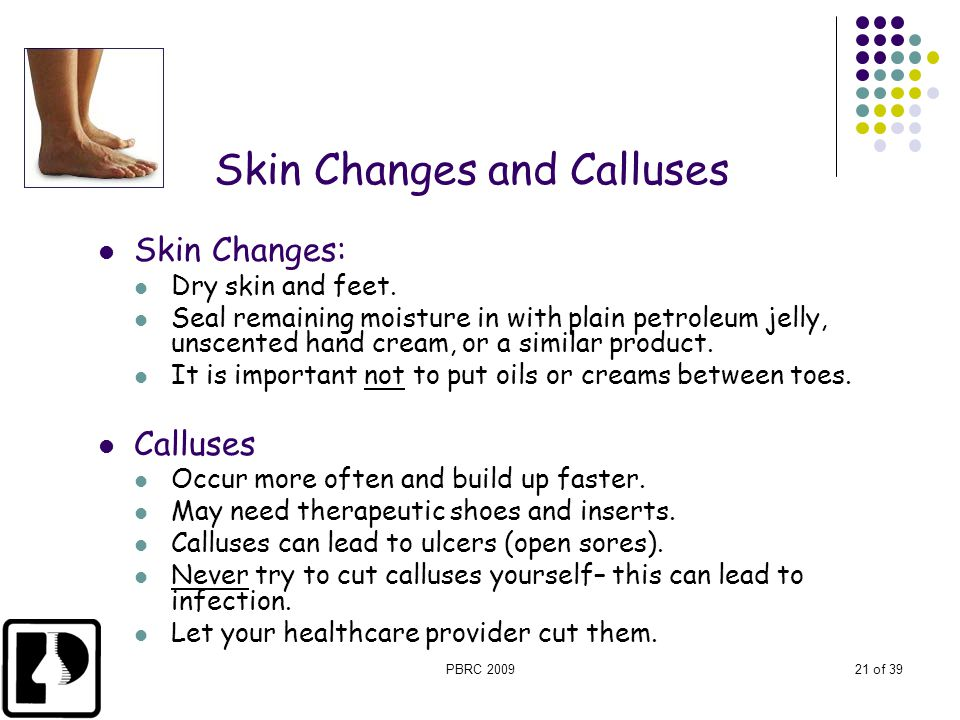 PBRC 200921 of 39 Skin Changes and Calluses Skin Changes: Dry skin and feet. Seal remaining moisture in with plain petroleum jelly, unscented hand cre