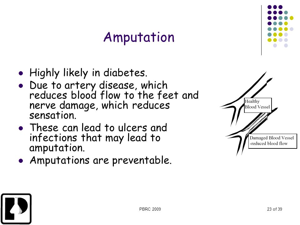 PBRC 200923 of 39 Amputation Highly likely in diabetes. Due to artery disease, which reduces blood flow to the feet and nerve damage, which reduces se