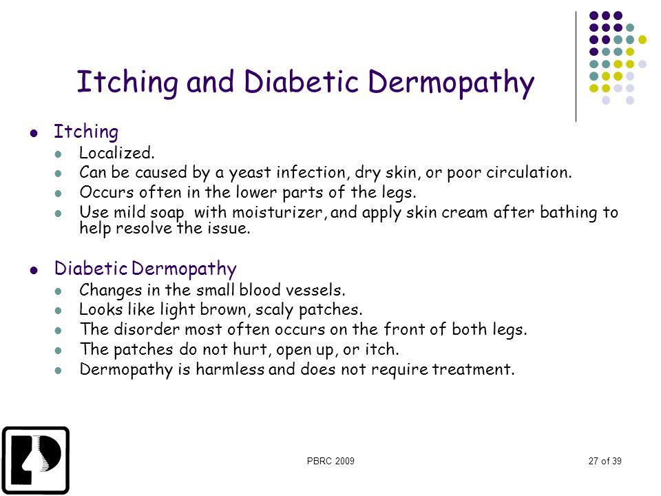 PBRC 200927 of 39 Itching and Diabetic Dermopathy Itching Localized. Can be caused by a yeast infection, dry skin, or poor circulation. Occurs often i