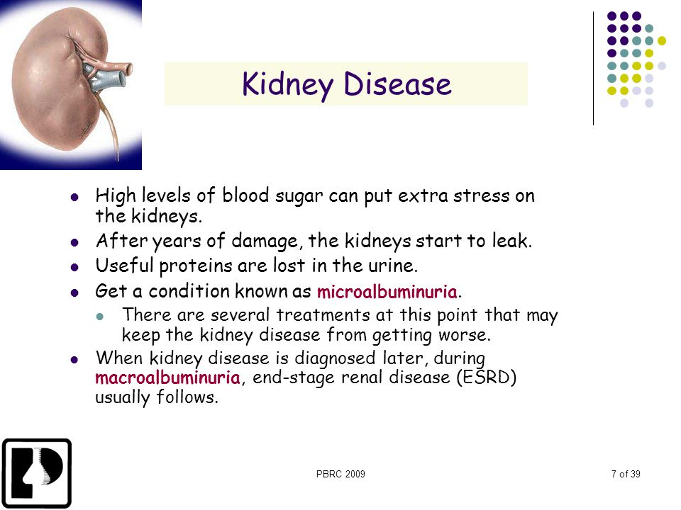 PBRC 20097 of 39 Kidney Disease High levels of blood sugar can put extra stress on the kidneys. After years of damage, the kidneys start to leak. Usef