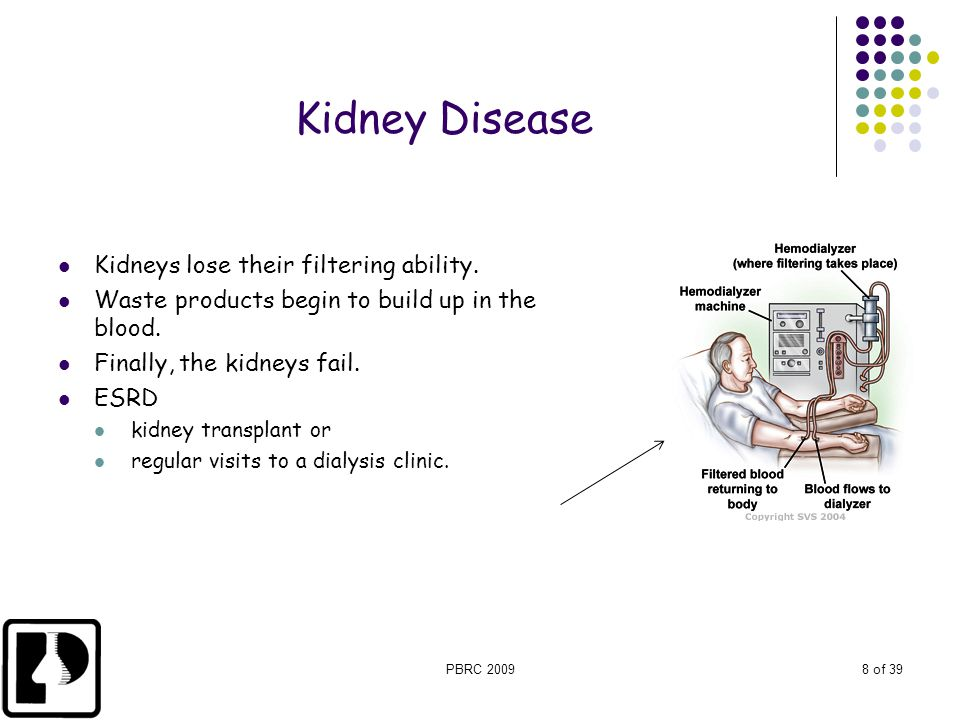 PBRC 20098 of 39 Kidney Disease Kidneys lose their filtering ability. Waste products begin to build up in the blood. Finally, the kidneys fail. ESRD k