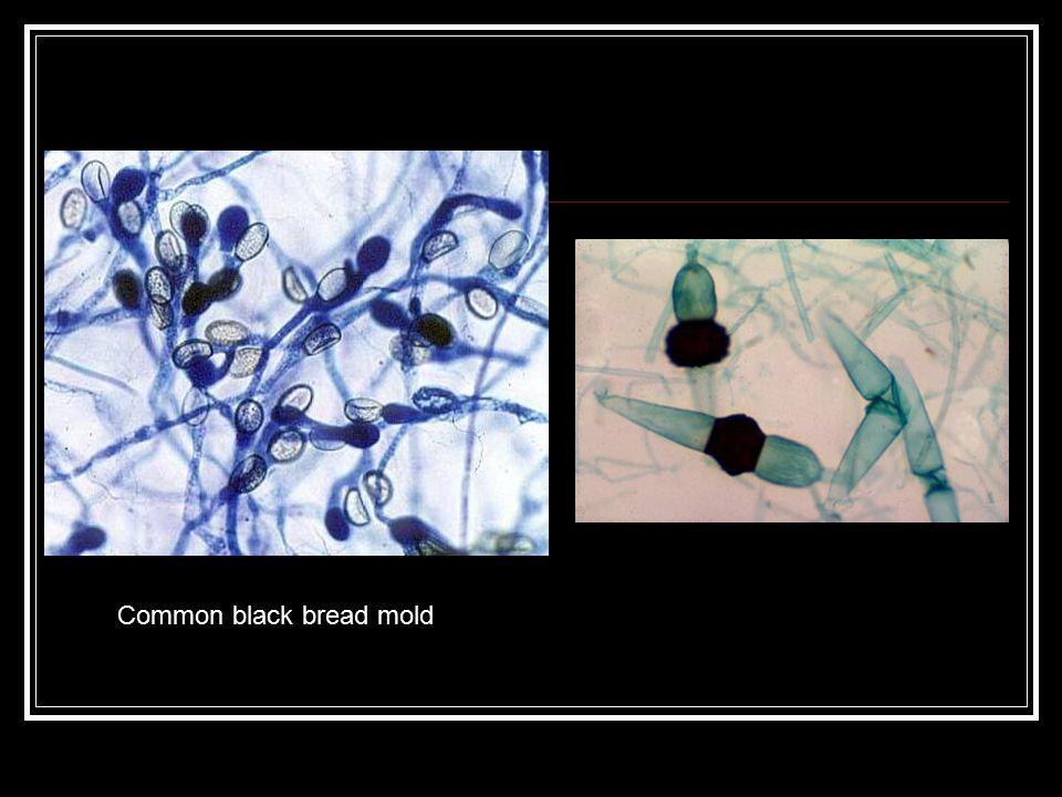 Common black bread mold
