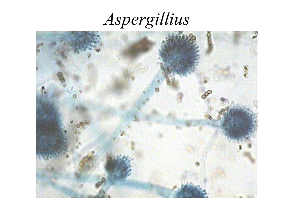 Aspergillius