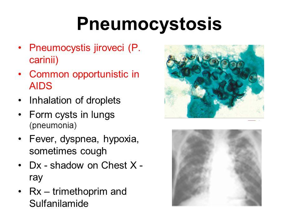 Pneumocystosis Pneumocystis jiroveci (P.