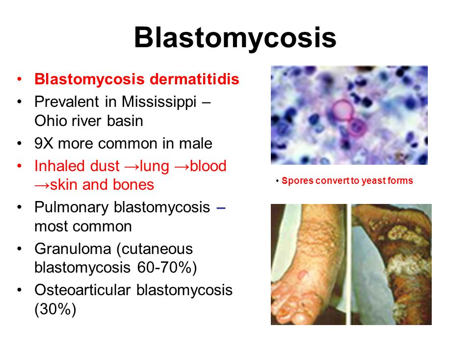 Blastomycosis Blastomycosis dermatitidis Prevalent in Mississippi – Ohio river basin 9X more common in male Inhaled dust →lung →blood →skin and bones Pulmonary blastomycosis – most common Granuloma (cutaneous blastomycosis 60-70%) Osteoarticular blastomycosis (30%) Spores convert to yeast forms