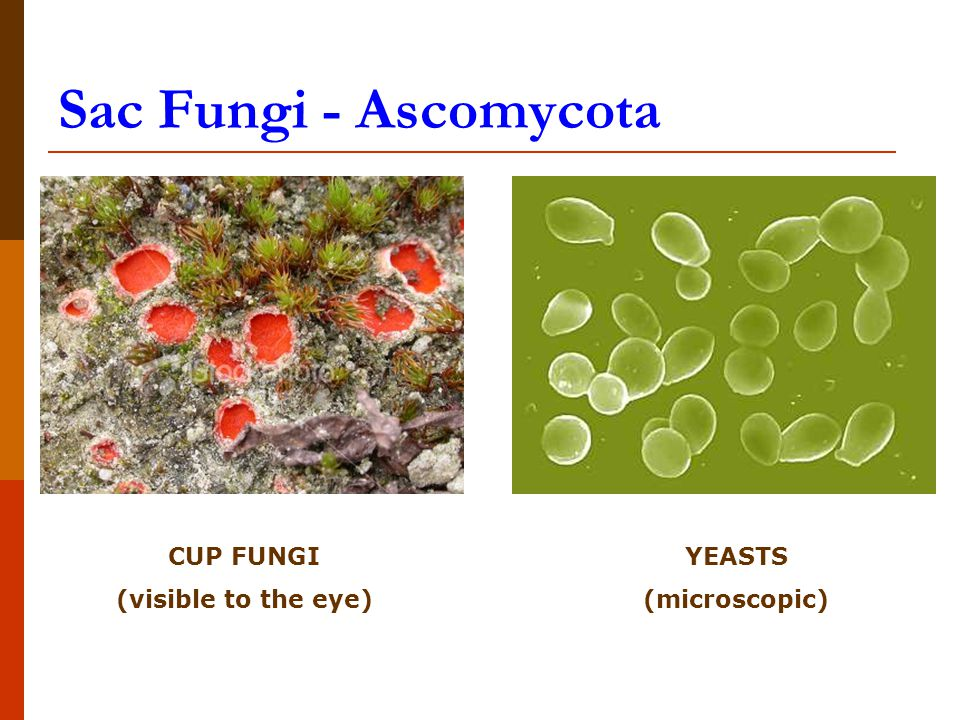 Sac Fungi - Ascomycota CUP FUNGI (visible to the eye) YEASTS (microscopic)