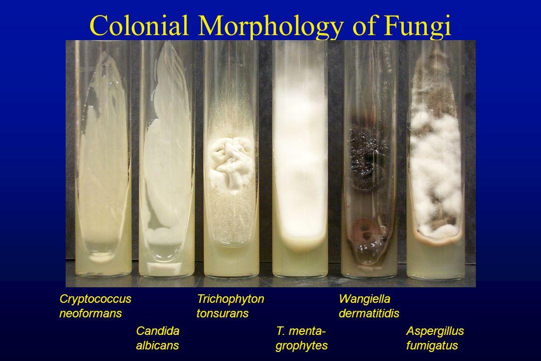 Colonial Morphology of Fungi Cryptococcus neoformans Candida albicans Wangiella dermatitidis Aspergillus fumigatus T. menta- grophytes Trichophyton to