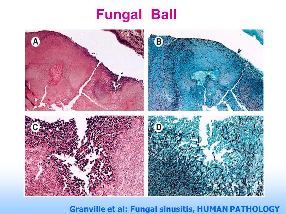 Fungal Ball Granville et al: Fungal sinusitis, HUMAN PATHOLOGY Volume 35, No. 4 (April 2004)