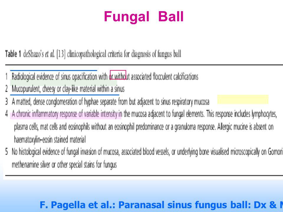 Fungal Ball F. Pagella et al.: Paranasal sinus fungus ball: Dx & Mx. Mycoses 2007, 50, 451–456