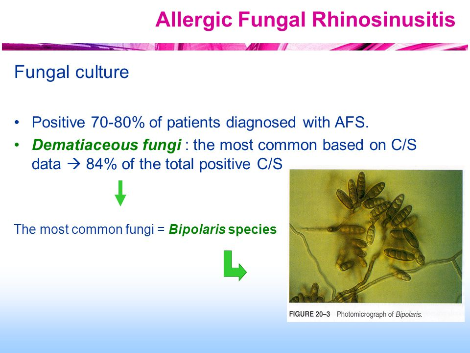 Allergic Fungal Rhinosinusitis Fungal culture Positive 70-80% of patients diagnosed with AFS.