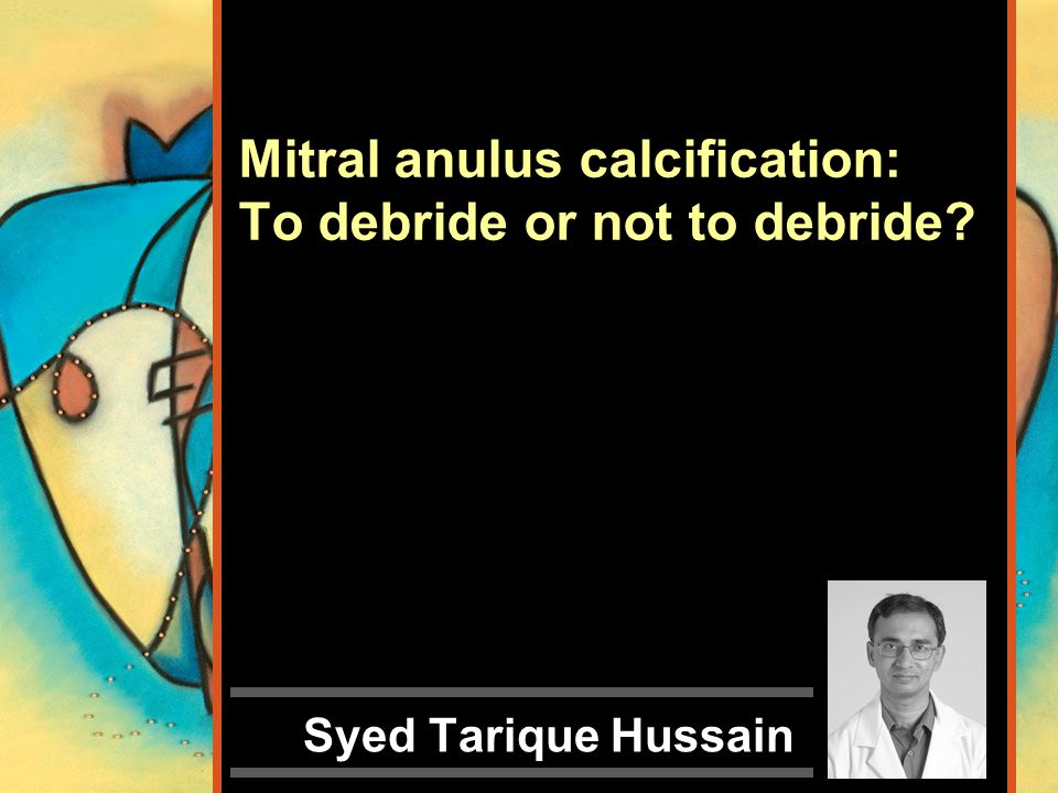 Mitral anulus calcification: To debride or not to debride? Syed Tarique Hussain