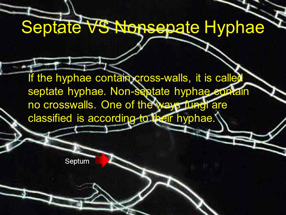Septate VS Nonsepate Hyphae If the hyphae contain cross-walls, it is called septate hyphae. Non-septate hyphae contain no crosswalls. One of the ways