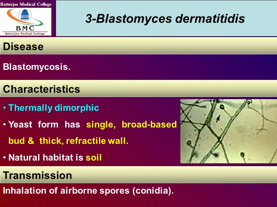 Batterjee Medical College 3-Blastomyces dermatitidis Disease Blastomycosis. Thermally dimorphic Yeast form has single, broad-based bud & thick, refrac