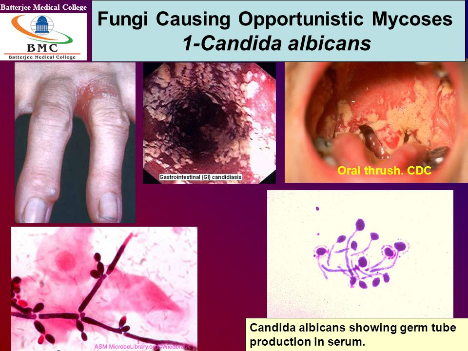 Batterjee Medical College Oral thrush. CDC Fungi Causing Opportunistic Mycoses 1-Candida albicans Candida albicans showing germ tube production in ser