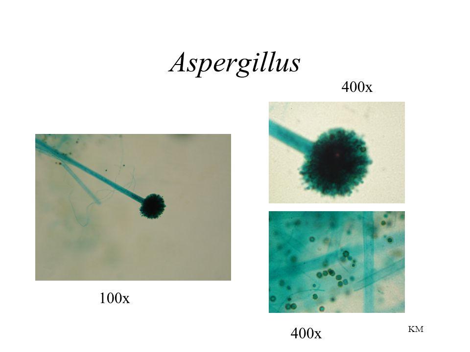 Aspergillus 100x 400x KM