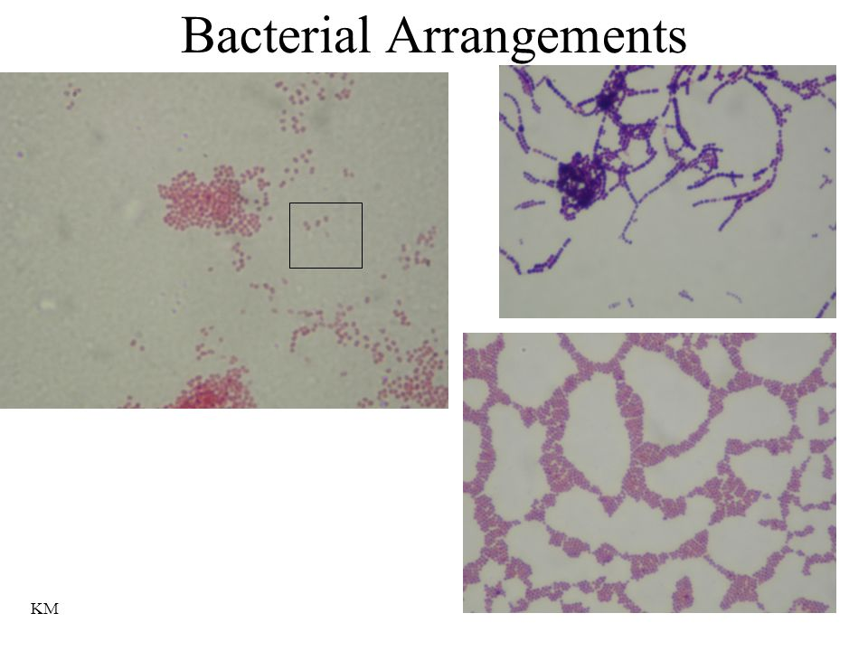 Bacterial Arrangements KM