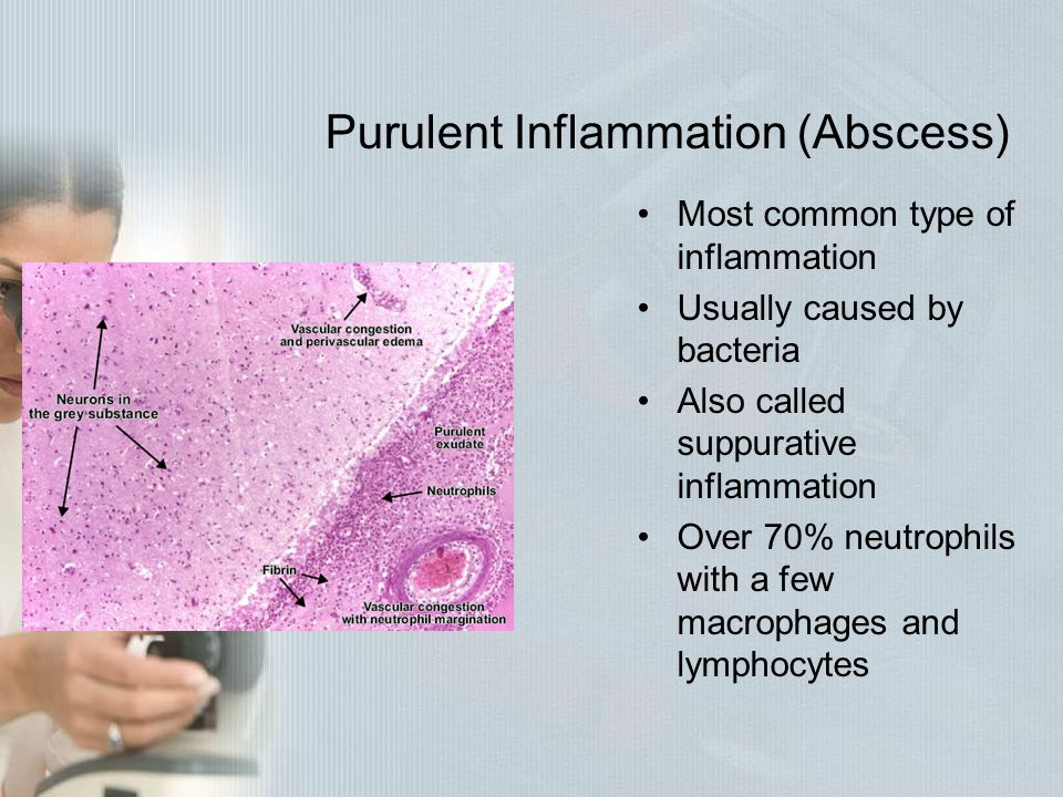 Purulent Inflammation (Abscess) Most common type of inflammation Usually caused by bacteria Also called suppurative inflammation Over 70% neutrophils
