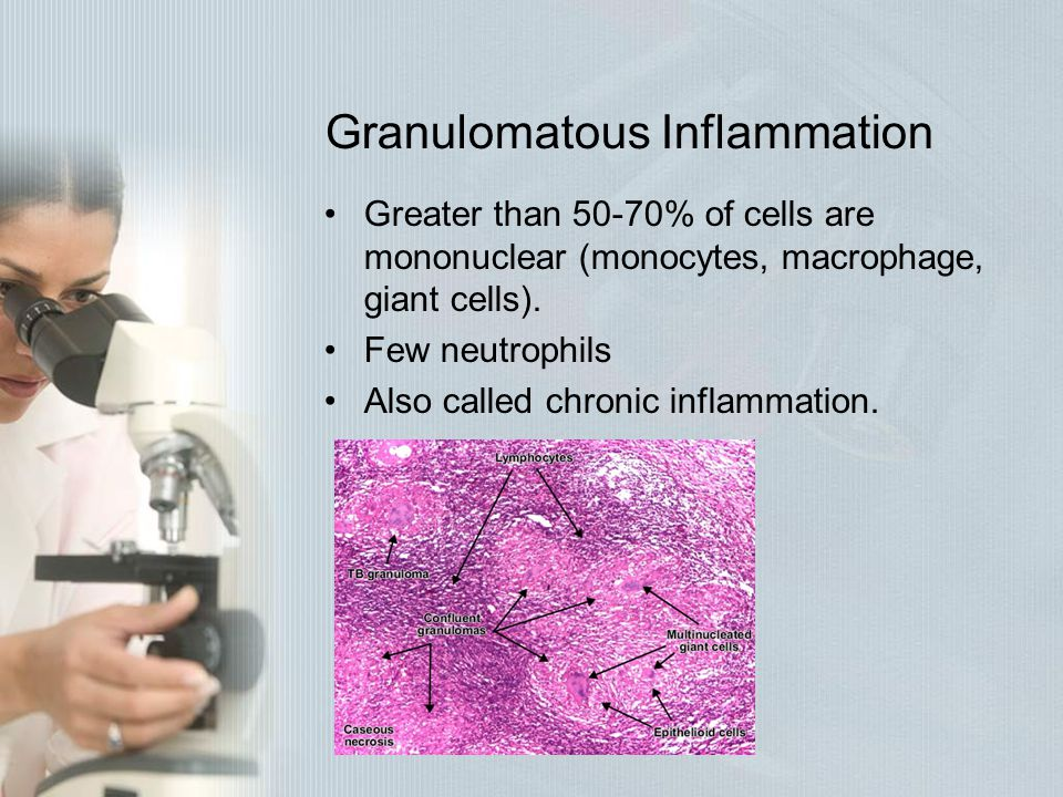 Granulomatous Inflammation Greater than 50-70% of cells are mononuclear (monocytes, macrophage, giant cells). Few neutrophils Also called chronic infl