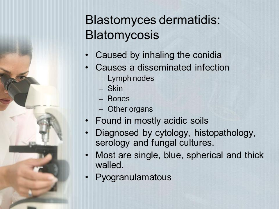 Blastomyces dermatidis: Blatomycosis Caused by inhaling the conidia Causes a disseminated infection –Lymph nodes –Skin –Bones –Other organs Found in m