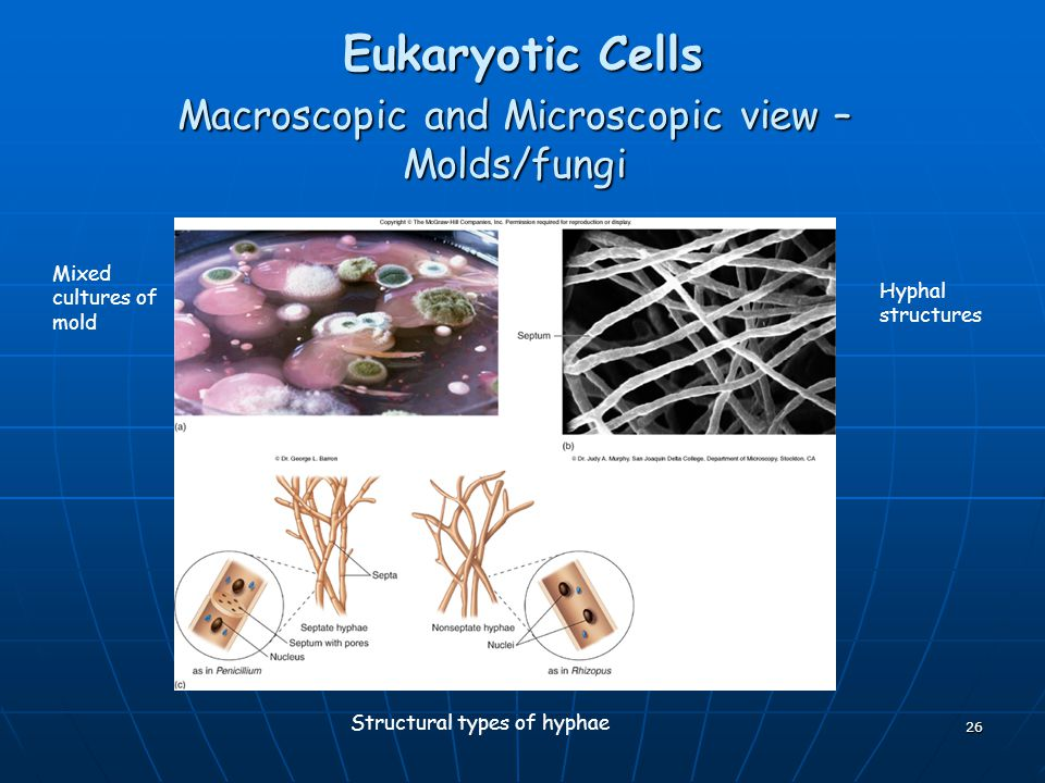 26 Eukaryotic Cells Macroscopic and Microscopic view – Molds/fungi Mixed cultures of mold Hyphal structures Structural types of hyphae