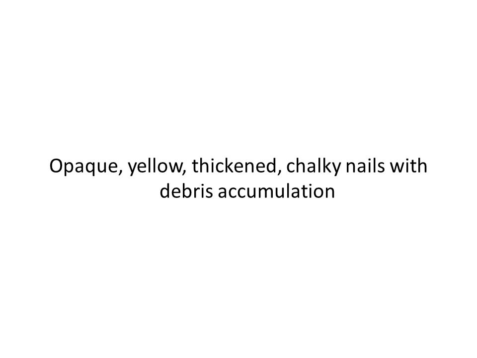 Opaque, yellow, thickened, chalky nails with debris accumulation