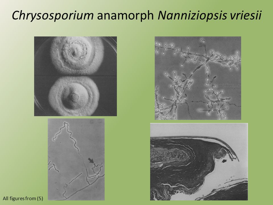 Chrysosporium anamorph Nanniziopsis vriesii All figures from (5)