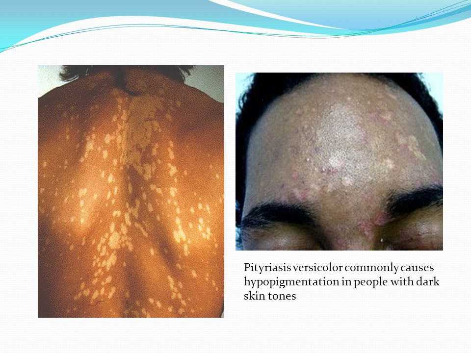 Clinical presentation: Papules are solid raised skin lesions with defined borders (less than 1 cm).