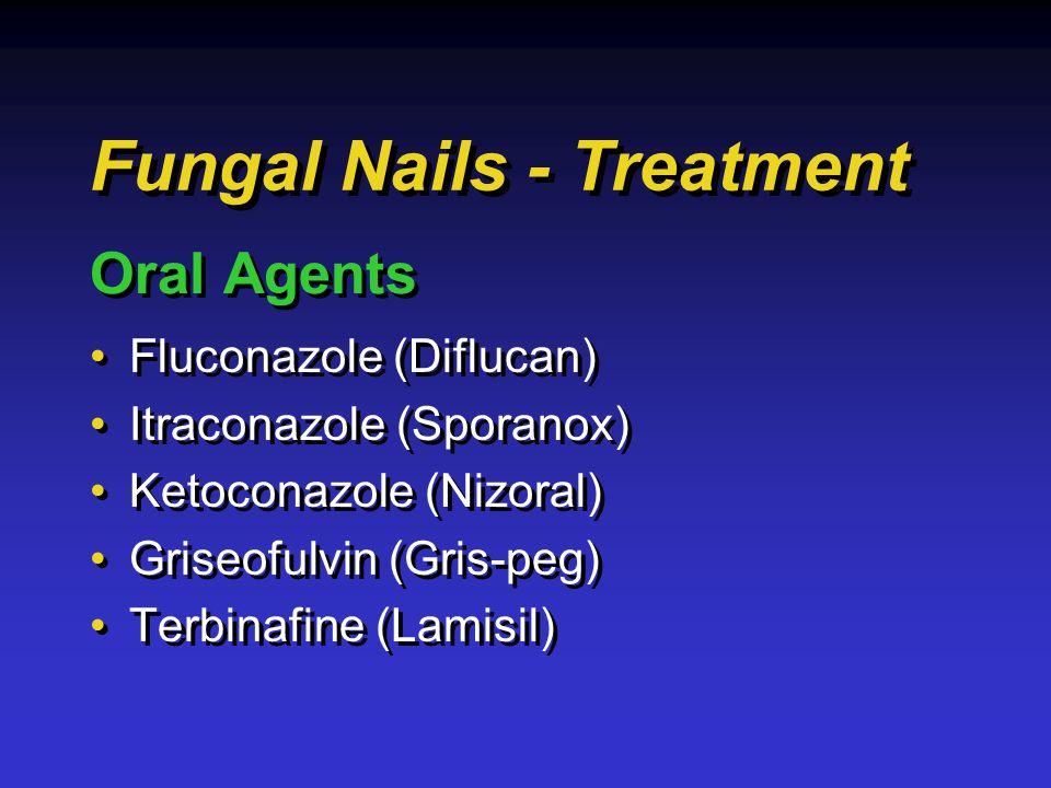 Fluconazole (Diflucan) Itraconazole (Sporanox) Ketoconazole (Nizoral) Griseofulvin (Gris-peg) Terbinafine (Lamisil) Fluconazole (Diflucan) Itraconazole (Sporanox) Ketoconazole (Nizoral) Griseofulvin (Gris-peg) Terbinafine (Lamisil) Fungal Nails - Treatment