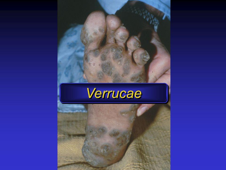 Verrucae