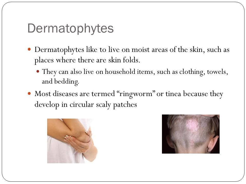 Dermatophytes Dermatophytes like to live on moist areas of the skin, such as places where there are skin folds. They can also live on household items,
