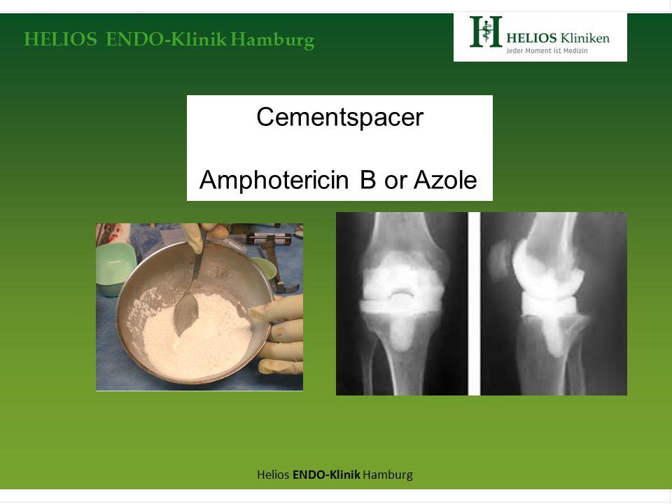 HELIOS ENDO-Klinik Hamburg Helios ENDO-Klinik Hamburg Cementspacer Amphotericin B or Azole