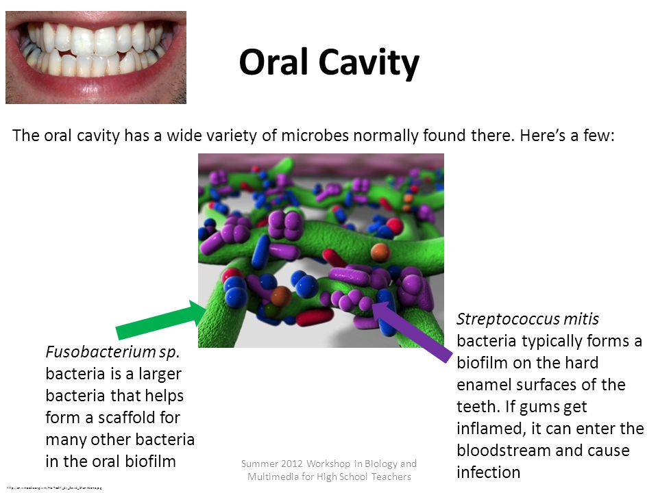 Oral Cavity Summer 2012 Workshop in Biology and Multimedia for High School Teachers http://en.wikipedia.org/wiki/File:Teeth_by_David_Shankbone.jpg The oral cavity has a wide variety of microbes normally found there.