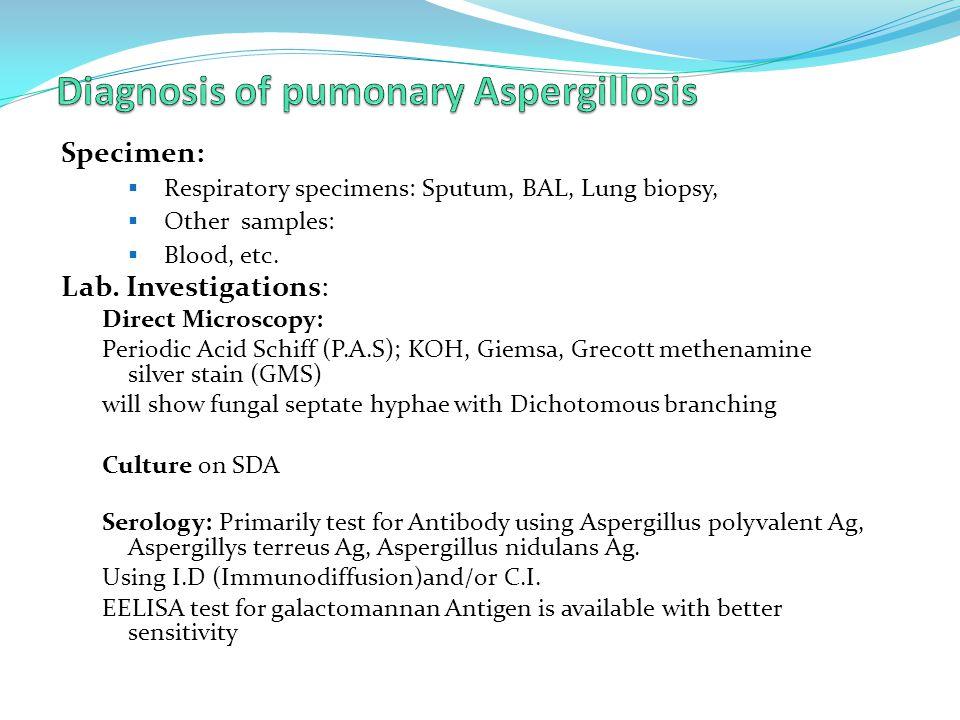 Specimen:  Respiratory specimens: Sputum, BAL, Lung biopsy,  Other samples:  Blood, etc. Lab. Investigations: Direct Microscopy: Periodic Acid Schi