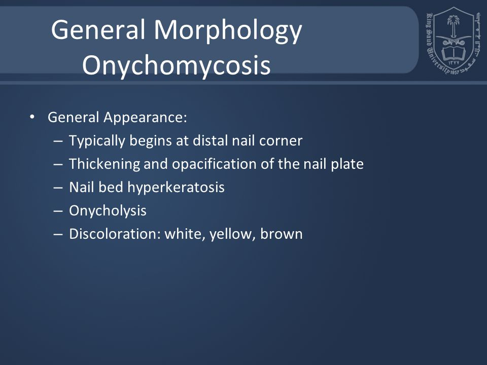 General Morphology Onychomycosis General Appearance: – Typically begins at distal nail corner – Thickening and opacification of the nail plate – Nail