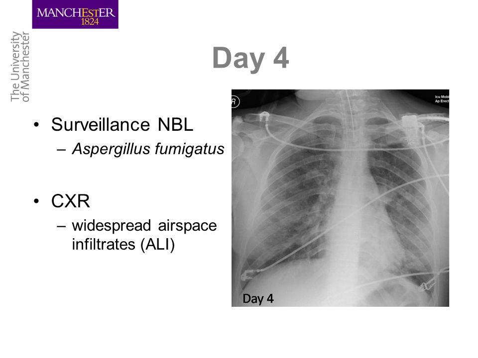 Day 4 Surveillance NBL –Aspergillus fumigatus CXR –widespread airspace infiltrates (ALI)