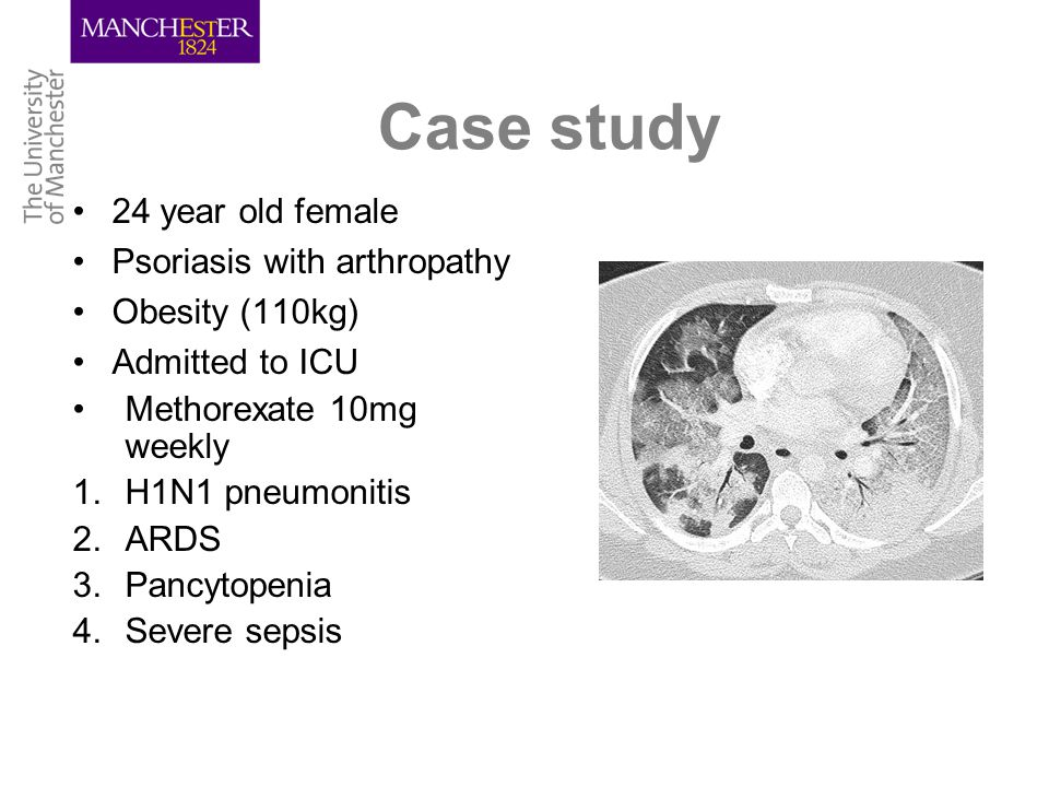 Case study 24 year old female Psoriasis with arthropathy Obesity (110kg) Admitted to ICU Methorexate 10mg weekly 1.H1N1 pneumonitis 2.ARDS 3.Pancytopenia 4.Severe sepsis