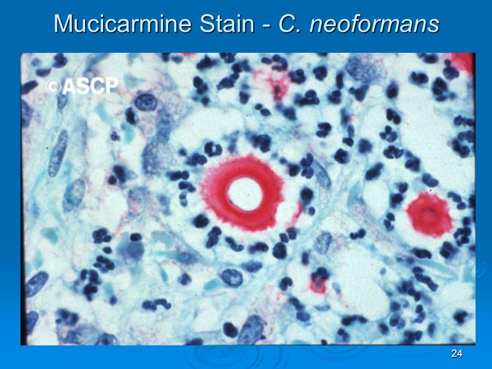 24 Mucicarmine Stain - C. neoformans